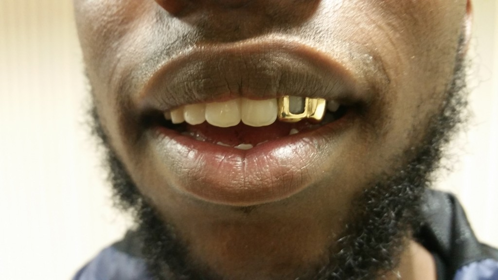 18 Ct Real Gold Grillz