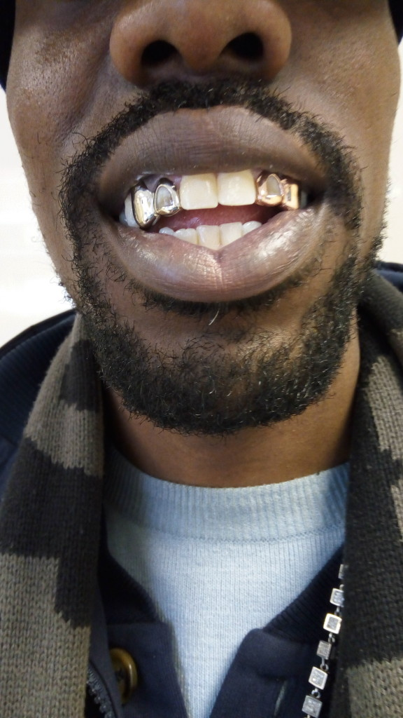 how to clean your gold grillz