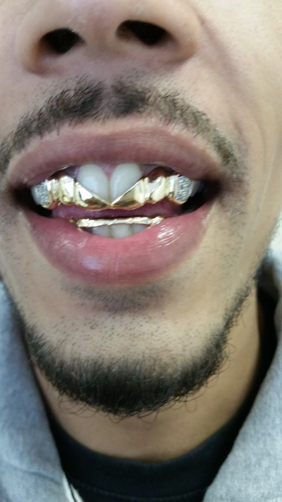 Real gold Grillz with Real diamonds 969632dca0